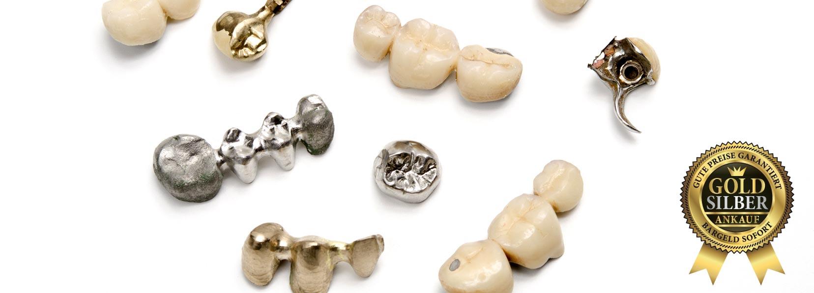 Zähne und Goldzähne